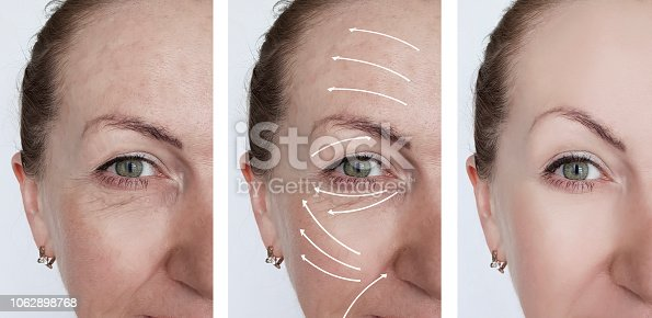 istock woman wrinkles correction before and after treatments arrow 1062898768