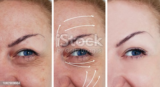 istock woman wrinkles correction before and after treatments arrow 1062909664