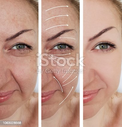 istock woman wrinkles correction before and after treatments arrow 1063028558