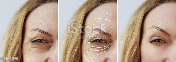 istock woman wrinkles correction before and after treatments arrow 1063030676