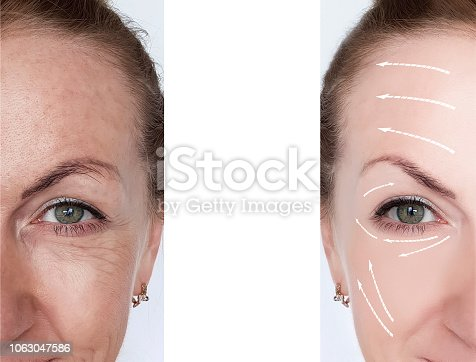 istock woman wrinkles correction before and after treatments arrow 1063047586