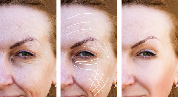 kvinna rynkor korrigering före och efter behandlingar pilen - filler swollen bildbanksfoton och bilder