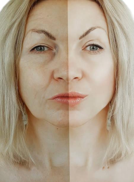 kvinna rynkor ansikte före och efter åldrande koncept - filler swollen bildbanksfoton och bilder