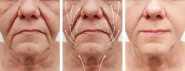 kvinna rynkor ansikte före och efter korrigeringen förfaranden, pil - filler swollen bildbanksfoton och bilder
