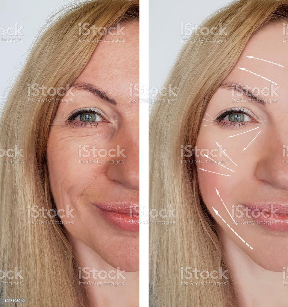 7b1a42875ce5 Frau Falten Gesicht Vor Und Nach Verfahren Stockfoto und mehr Bilder ...