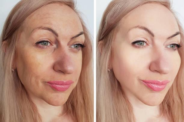 kvinnan rynkor ansikte före och efter förfaranden - filler swollen bildbanksfoton och bilder