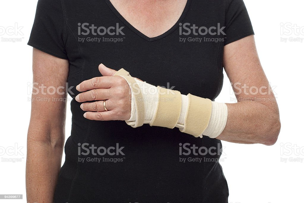 Woman's arm in long splint and bandage royalty-free stock photo