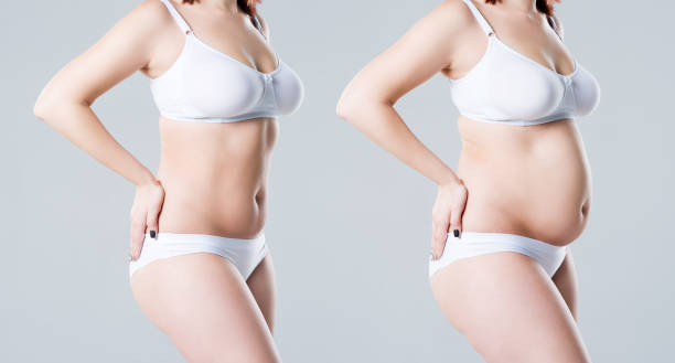 Woman's body before and after weight loss on gray background stock photo