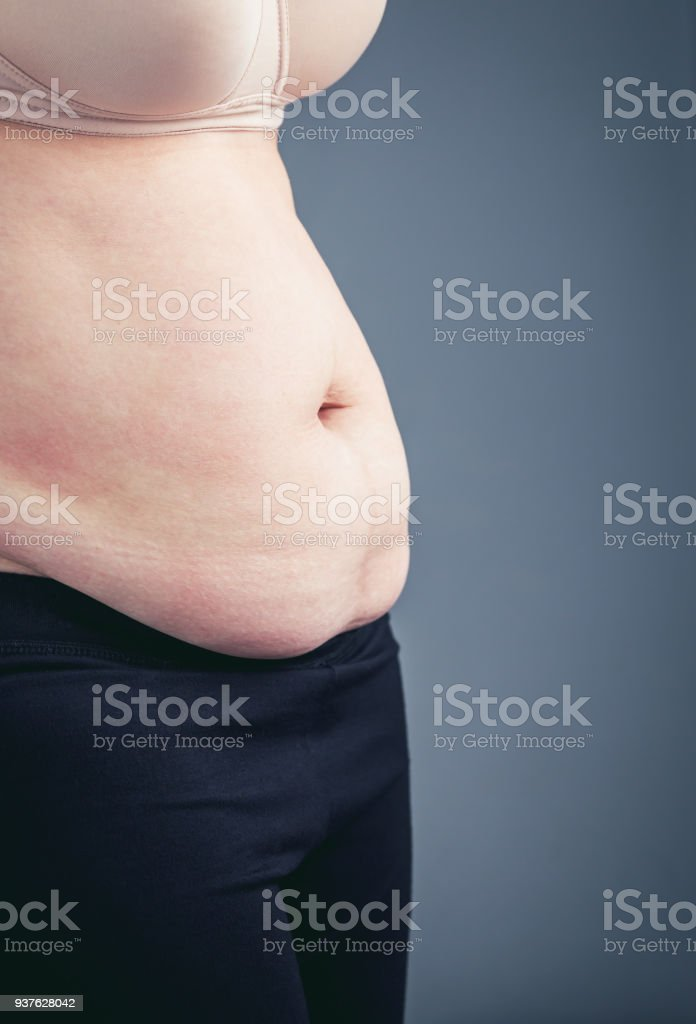 Close up of female\'s abdomen and hip. Woman\'s body with excessive...
