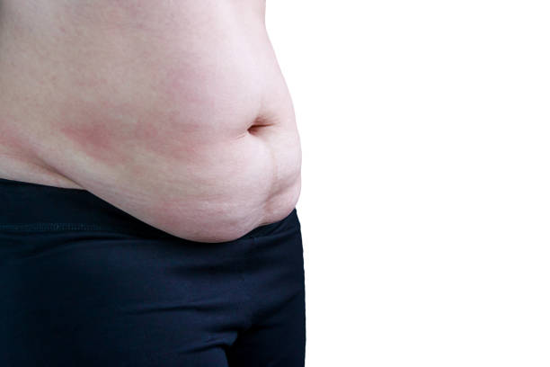 Woman's body with excessive belly fat, isolated on white background. stock photo