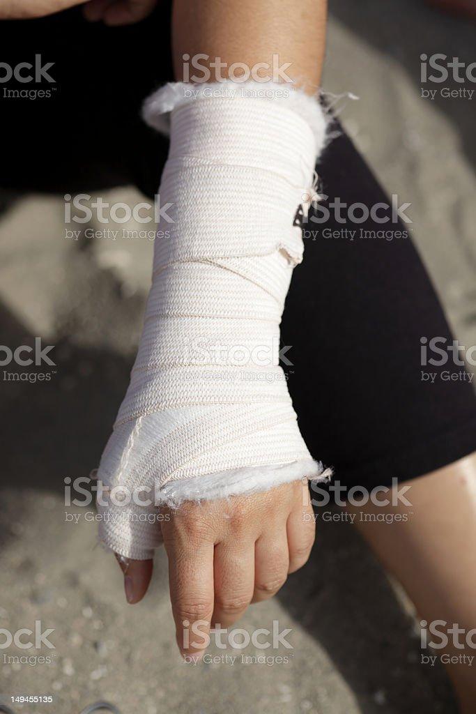 Woman's broken wrist in a cast stock photo