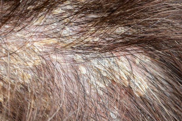 woman's dandruff in the hair and scalp stock photo