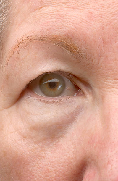 woman's droopy eyelid - eyelid stock pictures, royalty-free photos & images