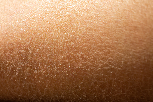 istock Woman's dry skin on leg, Close up & Macro shot, Asian skin tone, Abstract background 1083115748