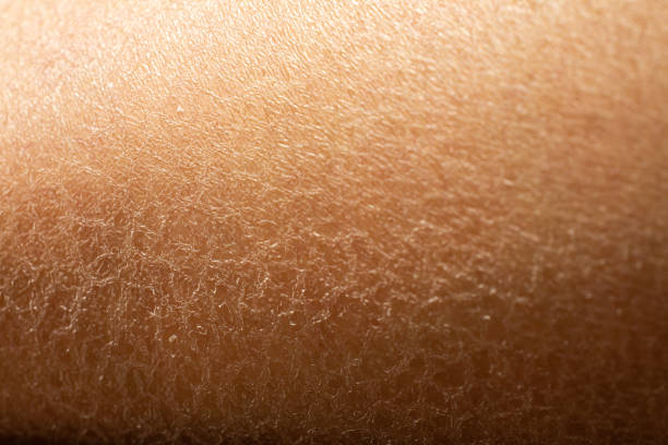 Woman's dry skin on leg, Close up & Macro shot, Asian skin tone, Abstract background Woman's dry skin on leg, Close up & Macro shot, Asian skin tone, Abstract background dry stock pictures, royalty-free photos & images