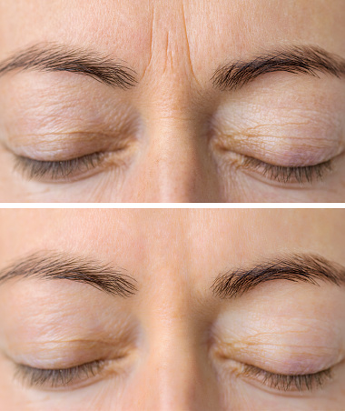 istock Woman's face skin before and after aesthetic beauty cosmetic procedures with removed skin wrinkles 1151514002