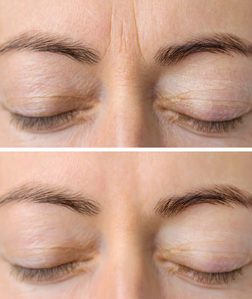 Woman's face skin before and after aesthetic beauty cosmetic procedures with removed skin wrinkles Close-up female's face skin before and after aesthetic beauty cosmetic procedures with removed skin wrinkles tighten stock pictures, royalty-free photos & images