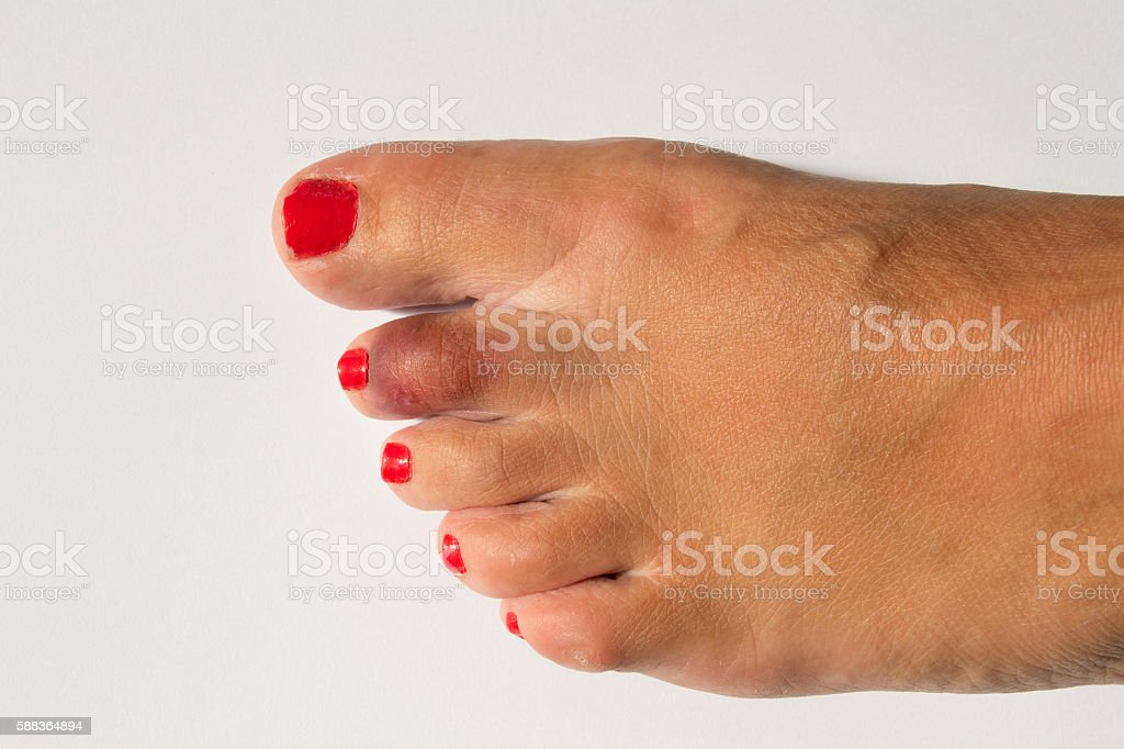 Womans Foot With Broken Toe Stock Photo & More Pictures of Anatomy ...