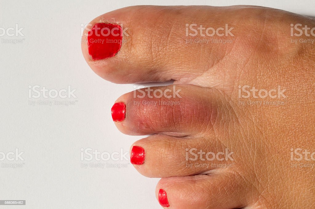 Woman's Foot with broken toe stock photo
