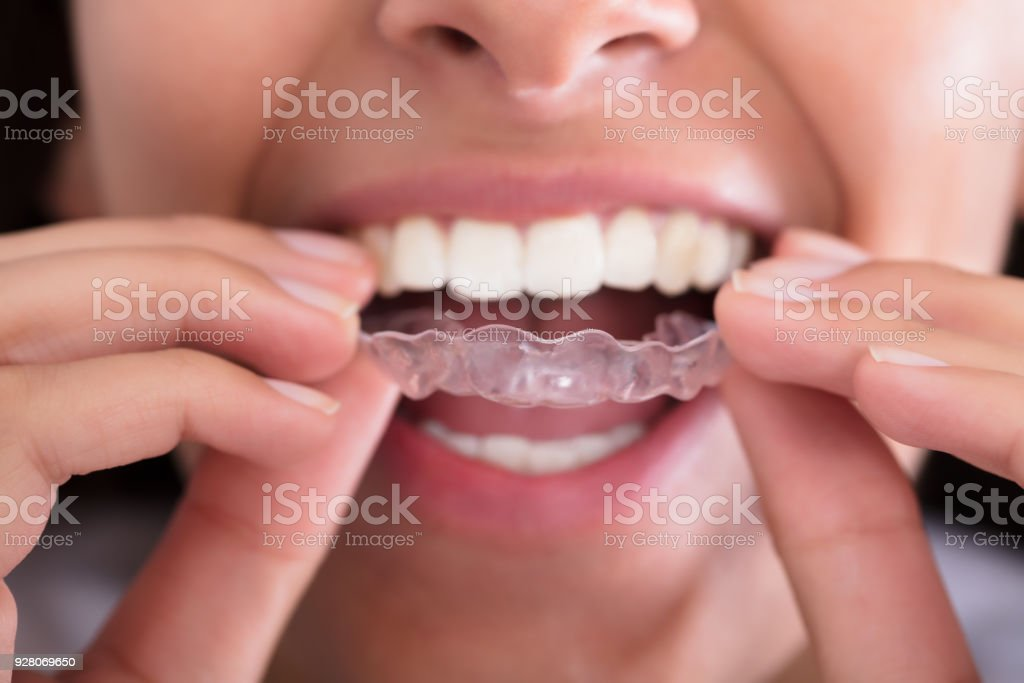 Woman's Hand Putting Transparent Aligner stock photo