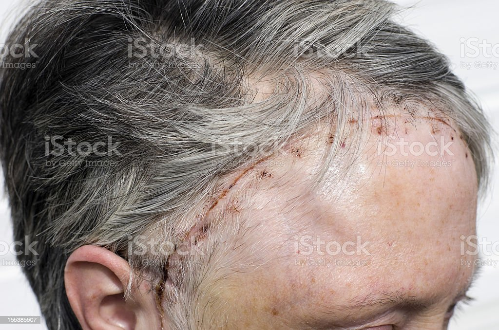 Woman's head 12 days after brain tumour surgery stock photo