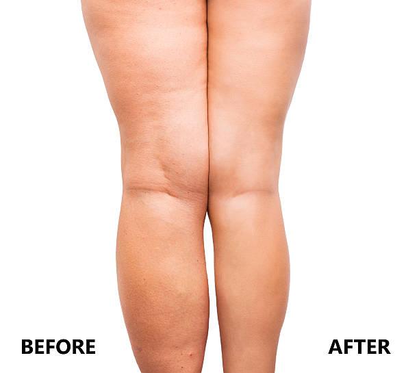 Leg Fat Loss 77