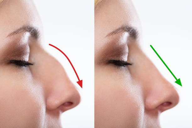 Woman's Nose Before And After Plastic Surgery stock photo