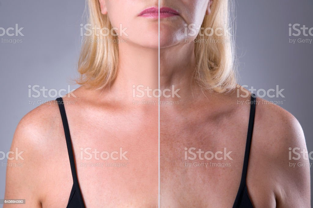 Woman's skin before after facelift and plastic surgery, wrinkle treatment stock photo