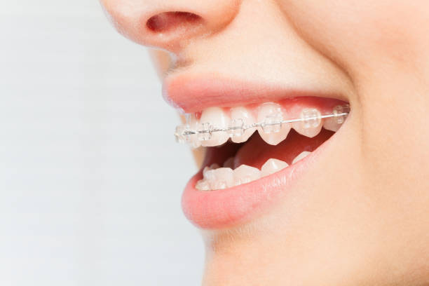 Woman's smile with clear dental braces on teeth stock photo