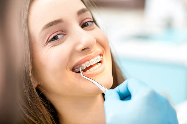 Woman's smile with dental braces stock photo