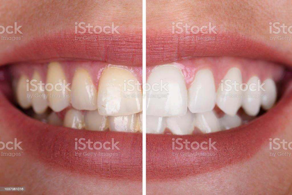 Die Zähne Frau vor und nach der Aufhellung - Lizenzfrei Bleichmittel Stock-Foto