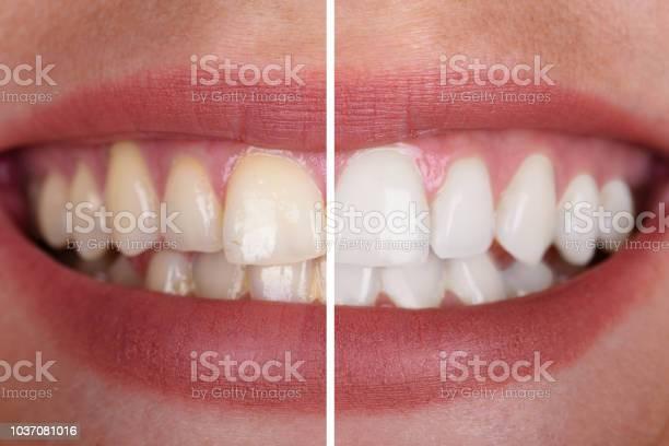 Die Zähne Frau Vor Und Nach Der Aufhellung Stockfoto und mehr Bilder von Bleichmittel