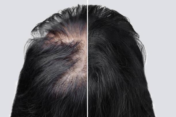 여성 대머리 탈모증. 미용 분말을 사용한 후 모발을 두껍게 합니다. 전후. - 붙임 머리 뉴스 사진 이미지
