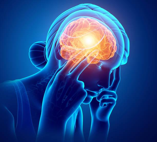 Women Feeling Headache - Photo