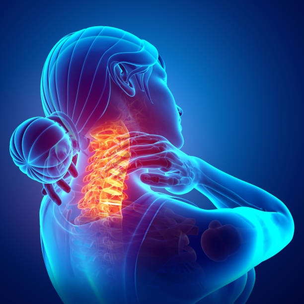 Women Feeling the Neck Pain 3d Illustration of Women Feeling the Neck Pain spine body part stock pictures, royalty-free photos & images