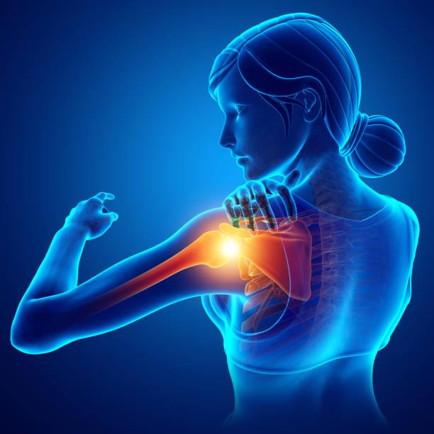Women Feeling the Shoulder Pain - foto stock