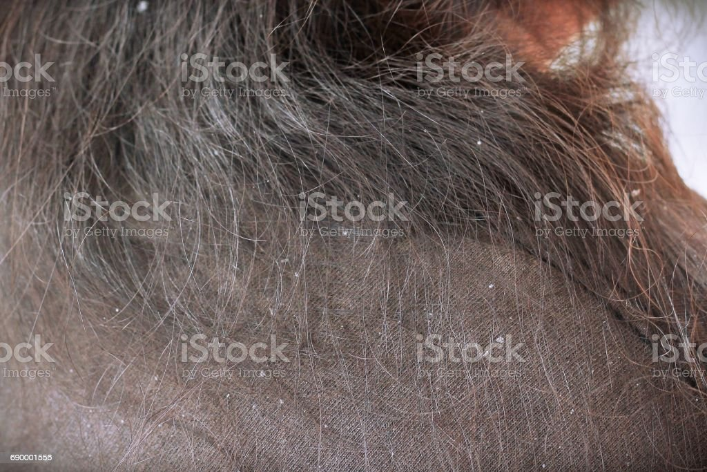 women having dandruff in the hair and shoulder stock photo