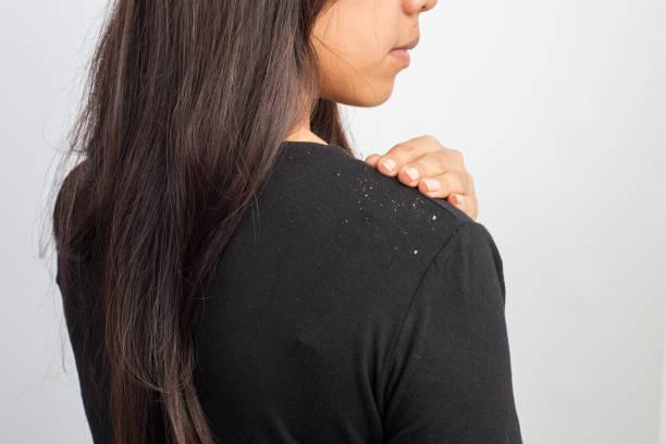 frauen, die schuppen in den haaren und schulter - trockene kopfhaut was tun stock-fotos und bilder
