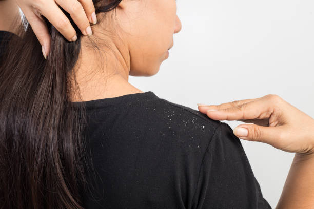 women having dandruff in the hair and shoulder women having dandruff in the hair and shoulder dandruff stock pictures, royalty-free photos & images