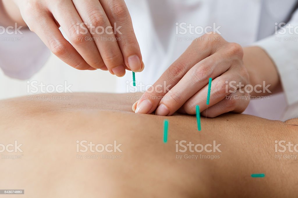 Women hit the acupuncture on his back in the salon - foto de stock