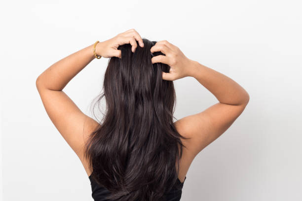 Women itching scalp damaged hair, Haircare concept. Women itching scalp damaged hair, Haircare concept. human scalp stock pictures, royalty-free photos & images