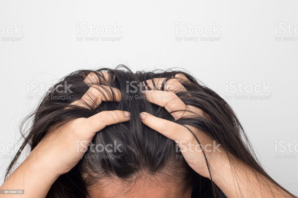 Women itching scalp damaged hair, Haircare concept. Women itching scalp damaged hair, Haircare concept. Adult Stock Photo