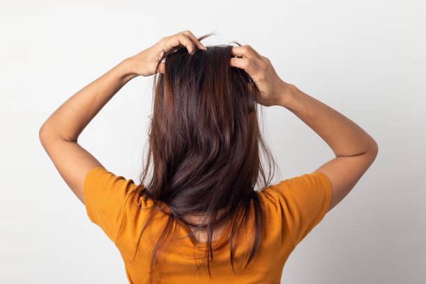 frauen juckende kopfhaut juckt seine haare und massieren ihre haare auf einem weißen hintergrund, haircare-konzept - trockene kopfhaut was tun stock-fotos und bilder