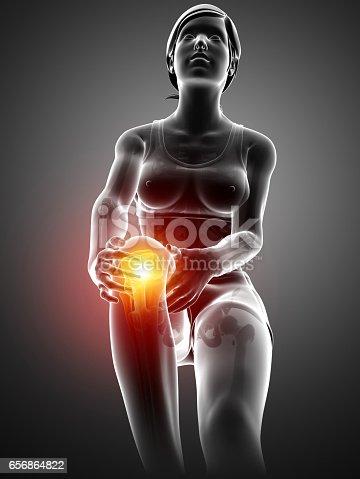 istock Women Knee joint pain 656864822