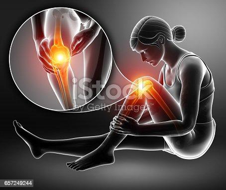 istock Women Knee joint pain 657249244