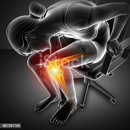 istock Women Knee joint pain 657261150