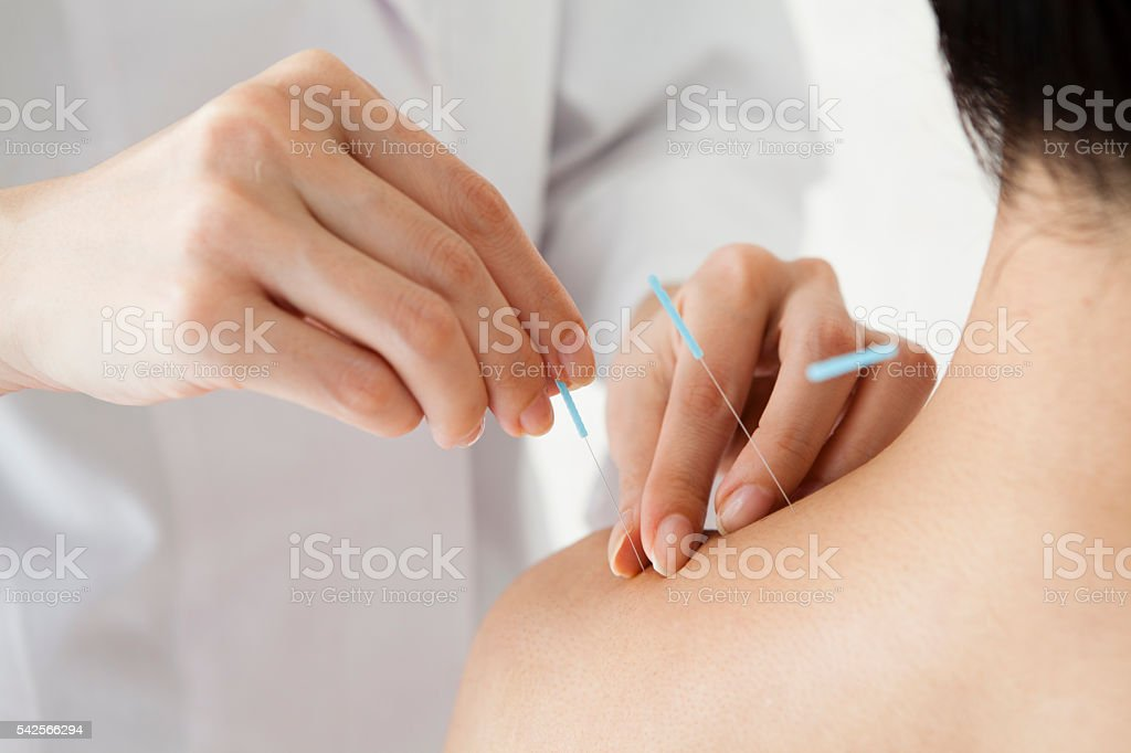 Women receiving acupuncture treatment at a hospital stock photo