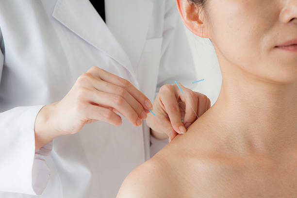 women receiving acupuncture treatment for beauty - acupuncture stock photos and pictures