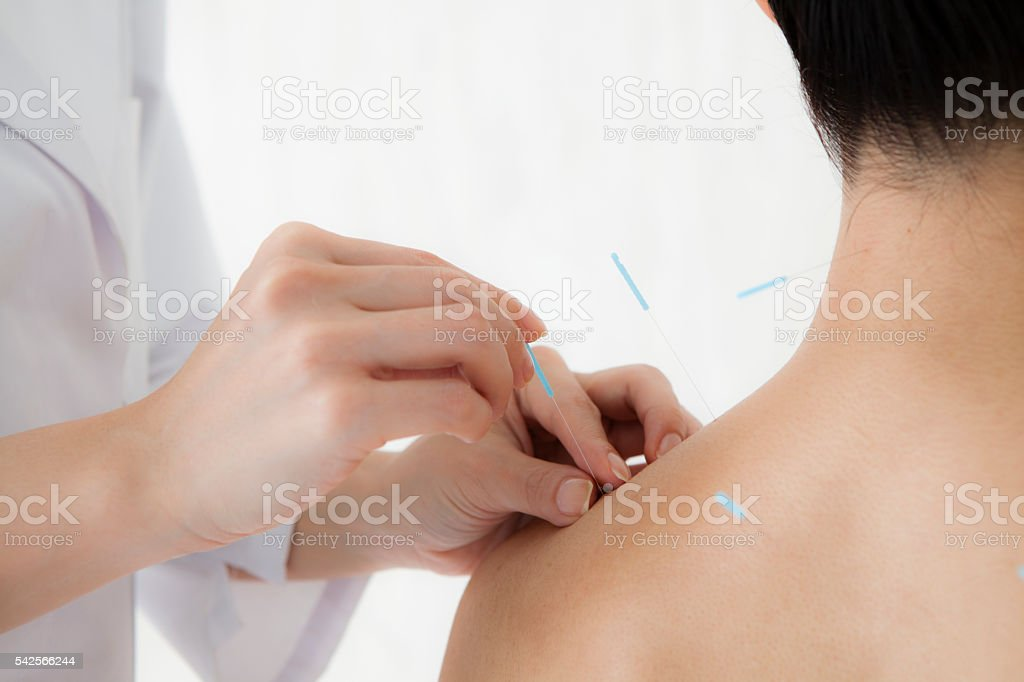 Women receiving acupuncture treatment for health