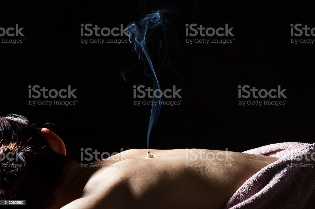 Women receiving moxibustion treatment stock photo